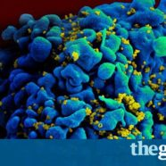 Cancer drug offers tantalising hope for HIV cure